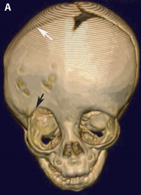 Pre-operative 3-D CT reconstruction of the skull demonstrating the effects of craniosynostosis. Note how the premature fusion of the right coronal suture (white arrow) has led to a distortion of the overall shape of the skull and right orbit