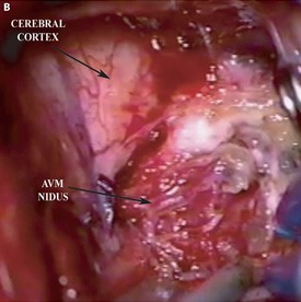 Intra-operative photo demonstrating the AVM nidus