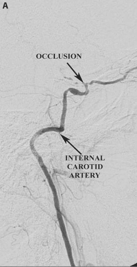 Pre-operative lateral angiogram demonstrating occlusion of the supraclinoidal segment of the internal carotid artery
